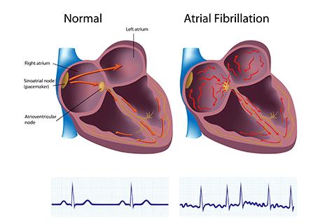 Atrial Fibrillation Testing